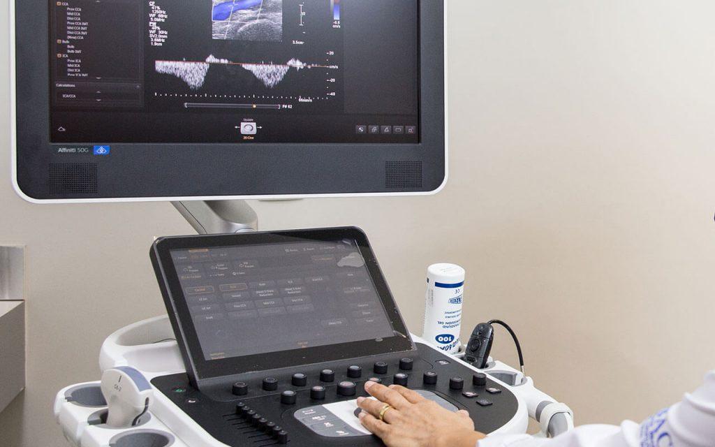 Cardiologista em Fortaleza e Maracanaú | ICCardio Doppler de Carótidas e Vertebrais