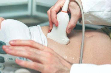 Cardiologista em Fortaleza e Maracanaú | ICCardio Ultrassom de rins e vias urinárias